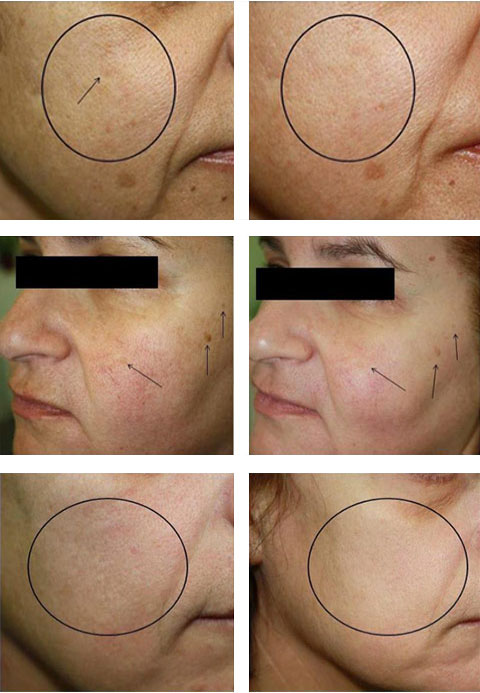 Genilo Dermasolutions Services Derm Consultation